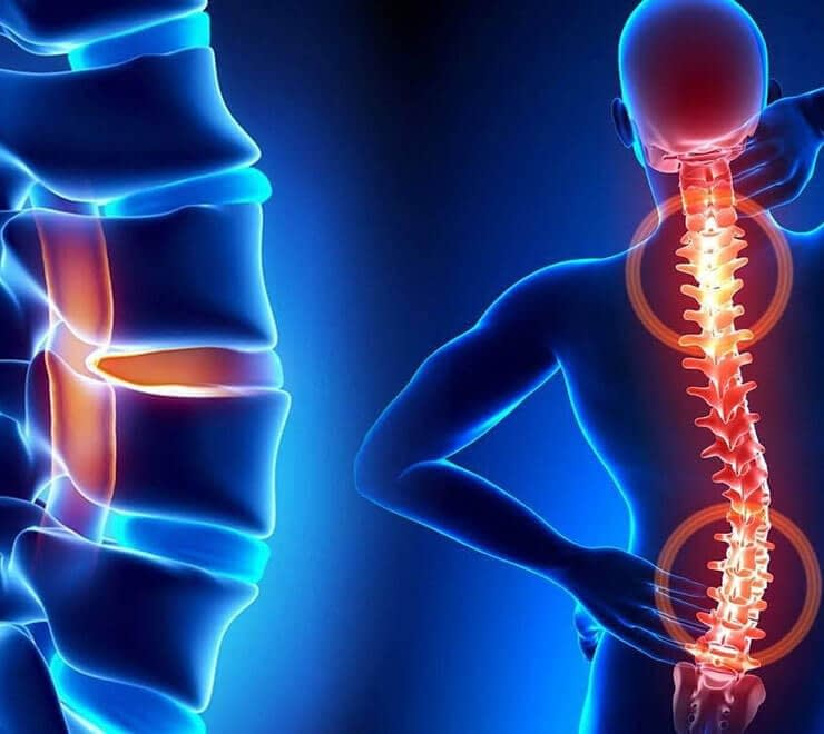 Chronic Pain and the Musculoskeletal System Cura Centers In CT