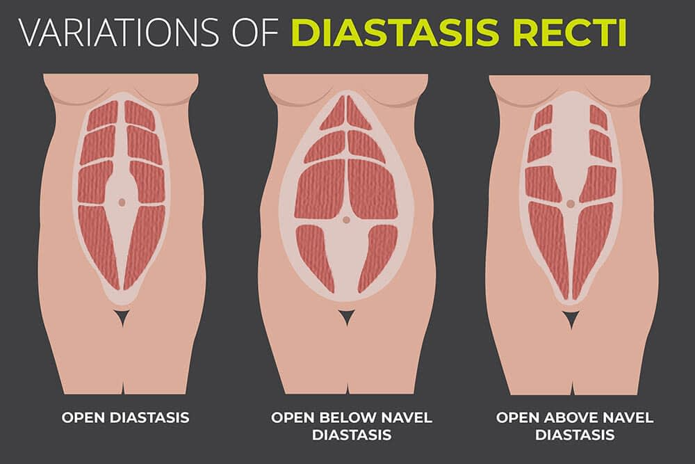 Suffering from Diastasis Recti Cura Centers Torrington CT