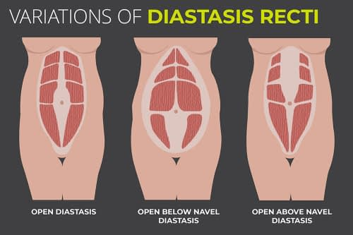 Physical Therapy May Help Diastasis Recti?
