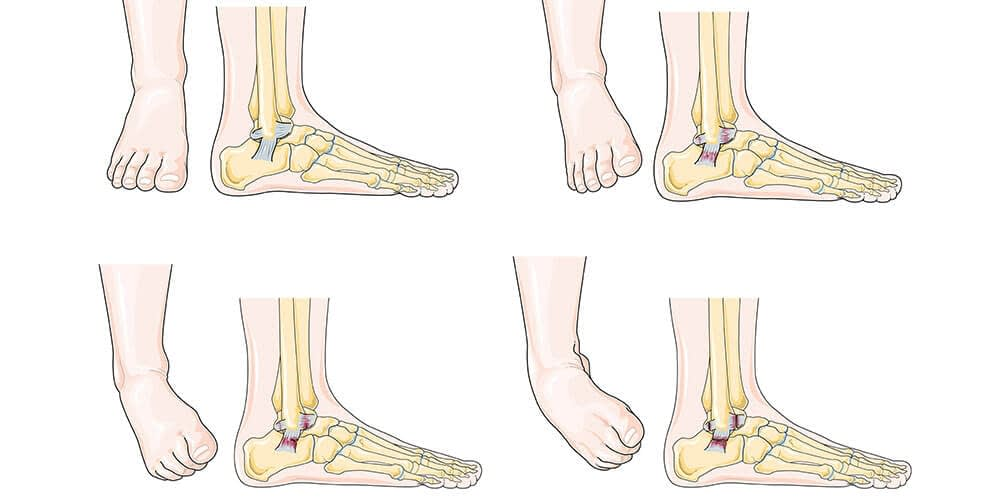 The-ankle-is-highly-susceptible-to-sprains-in-canton-ct